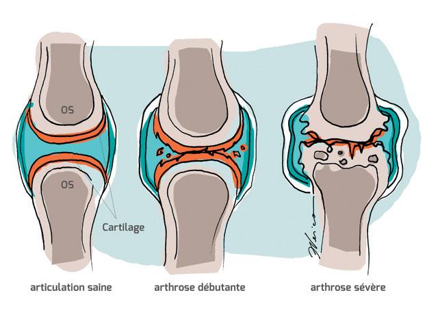arthrose schéma